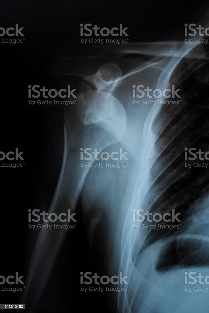 Shoulder X-Ray stock photo