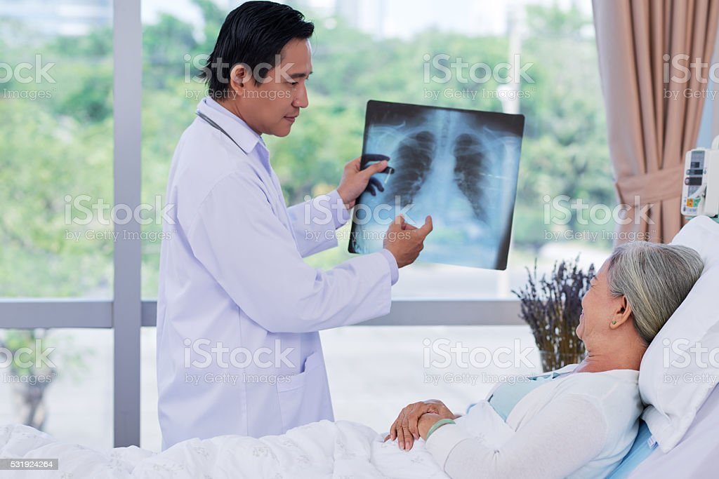 Showing x-ray stock photo