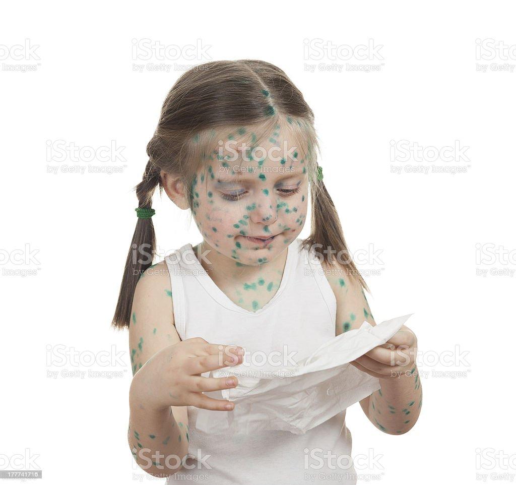 sick child. chickenpox royalty-free stock photo