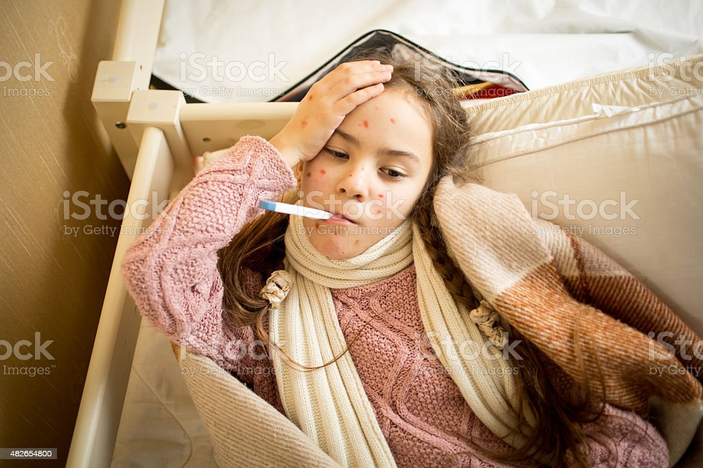 sick girl with chickenpox lying in bed and measuring temperature stock photo