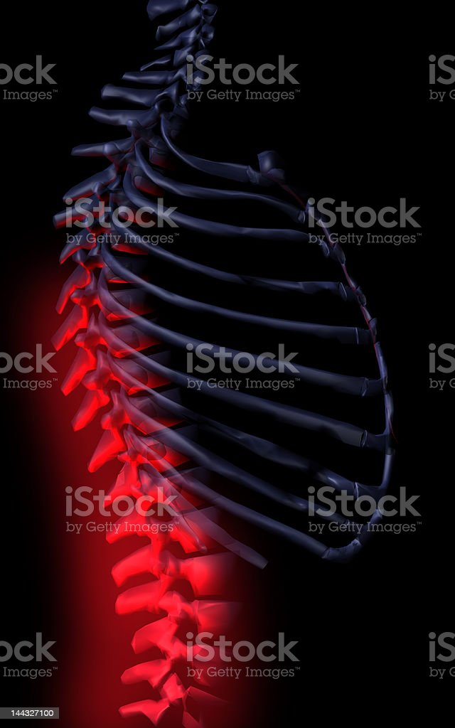 Sick spine royalty-free stock photo