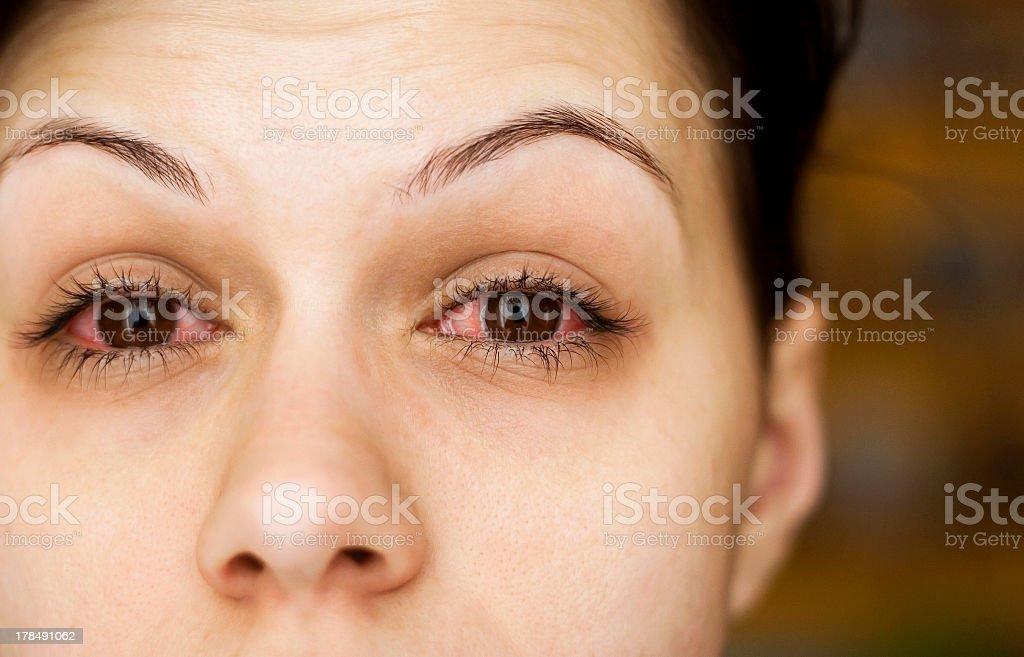 Sick woman's eyes stock photo