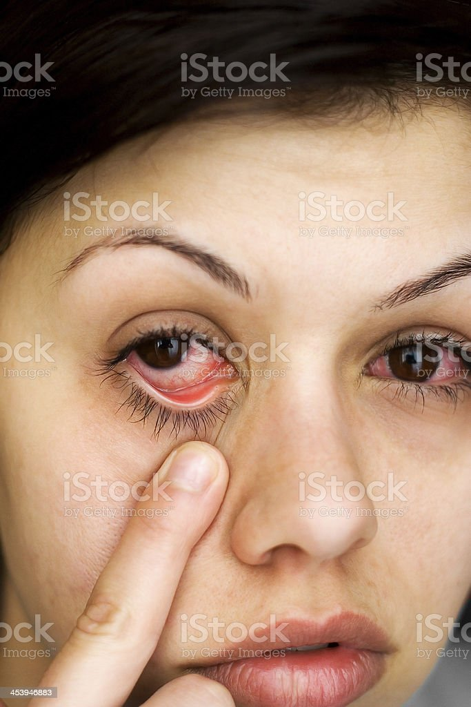 Sick woman's eyes stock photo