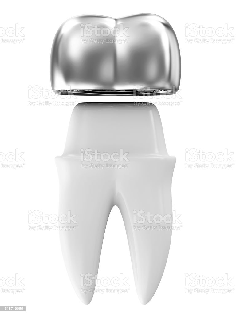 Silver Dental Crown on a Tooth isolated on white background stock photo