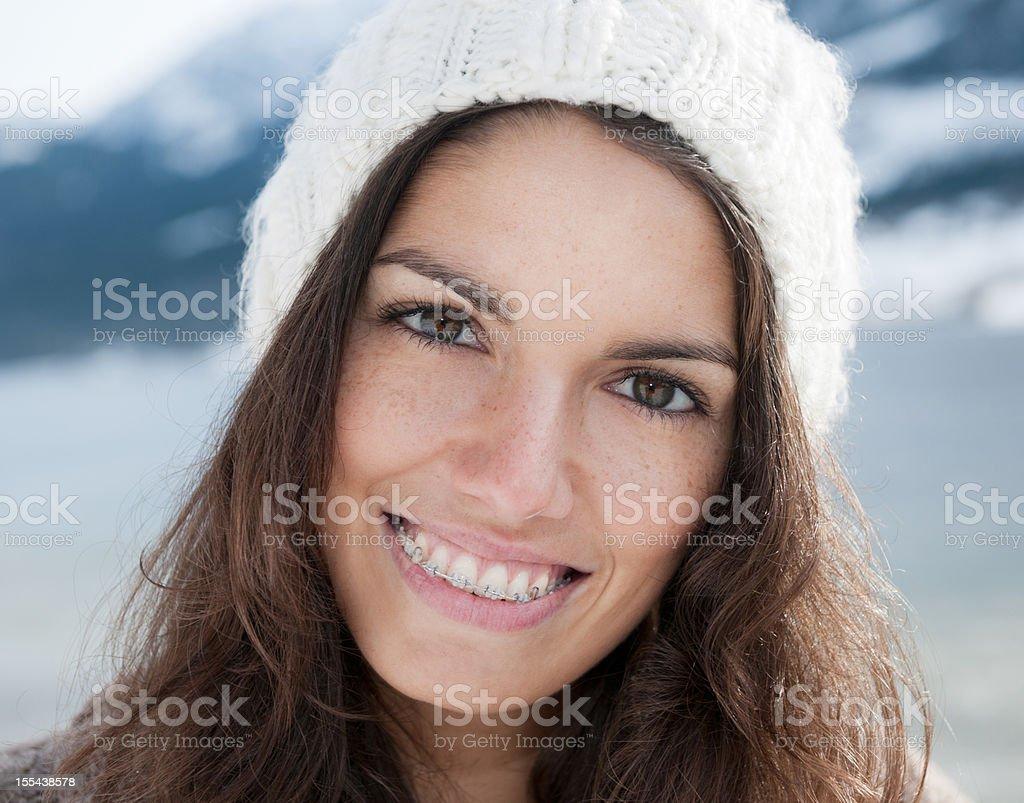 Simply Beautiful, Candid Braces Smile - Winter (XXXL) royalty-free stock photo
