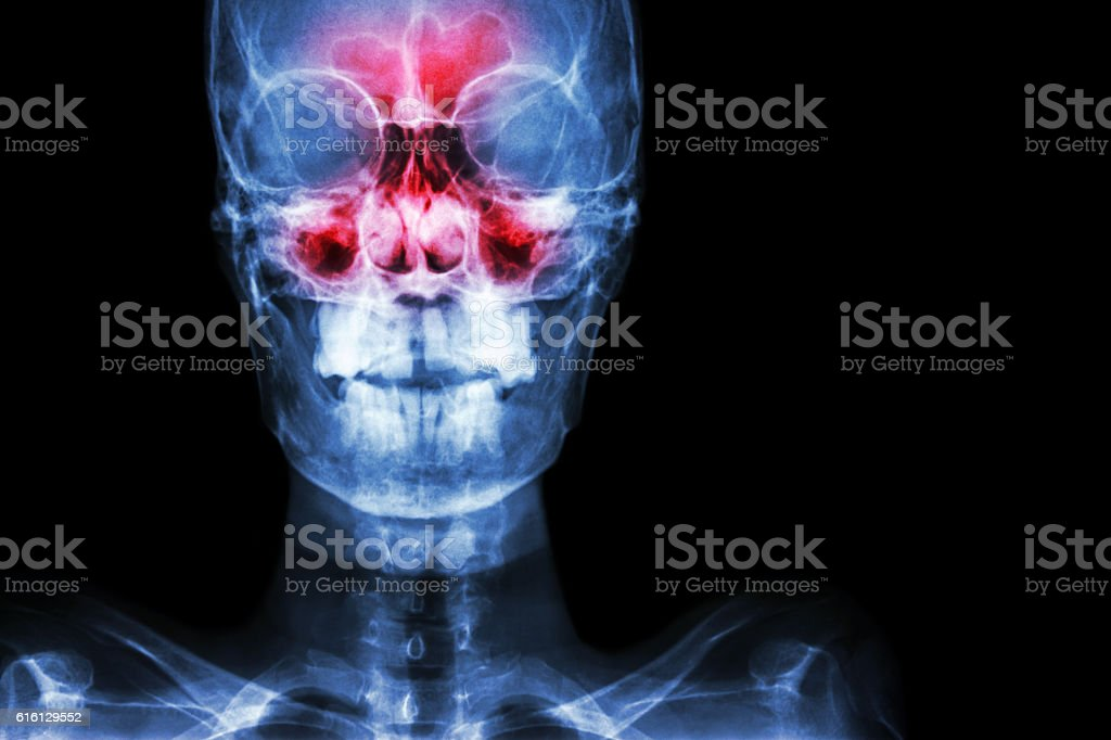 Sinusitis stock photo