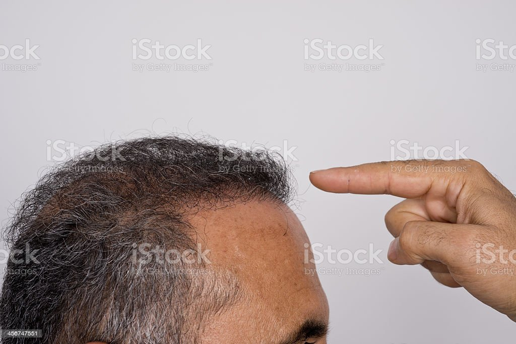Six months after hair transplant surgery stock photo