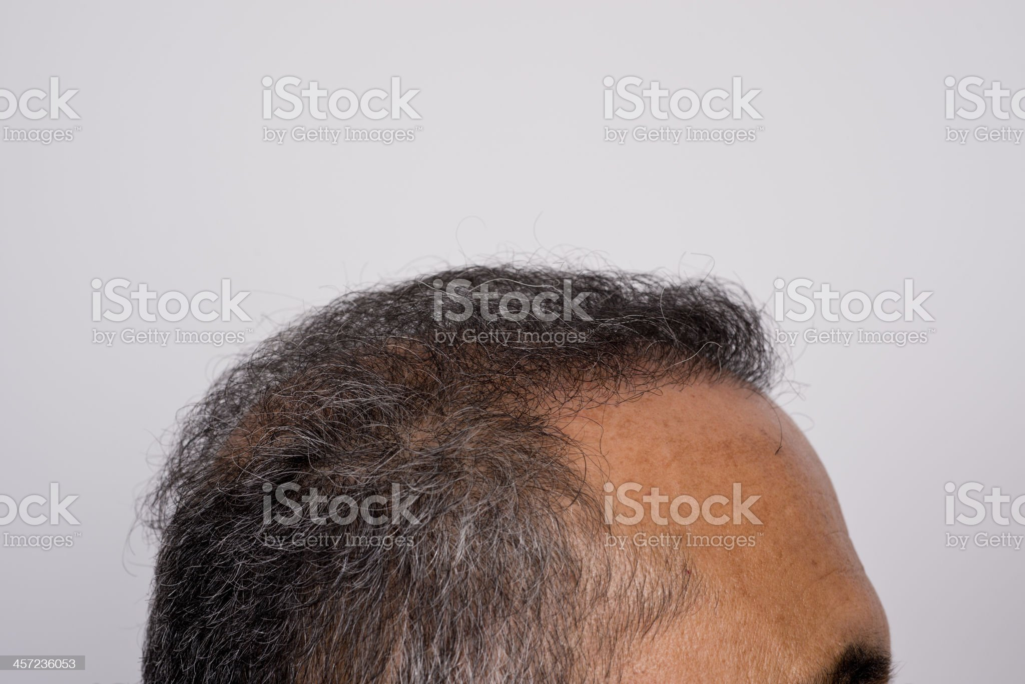Six months after hair transplant surgery royalty-free stock photo