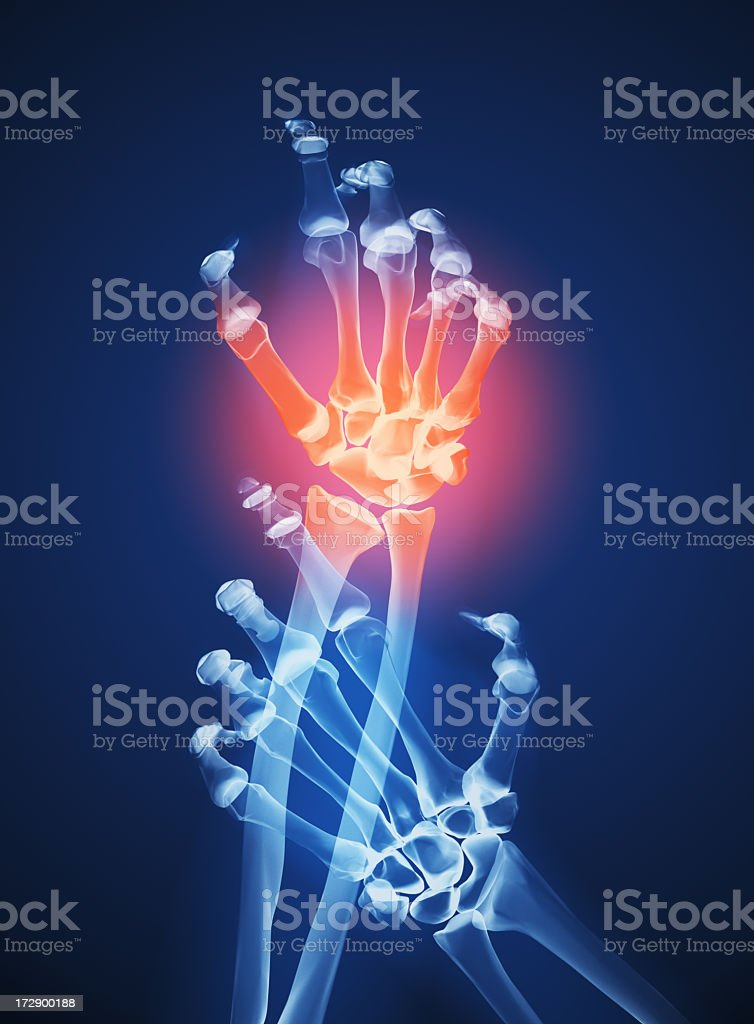 A skeletal image of two hands with one experiencing pain stock photo