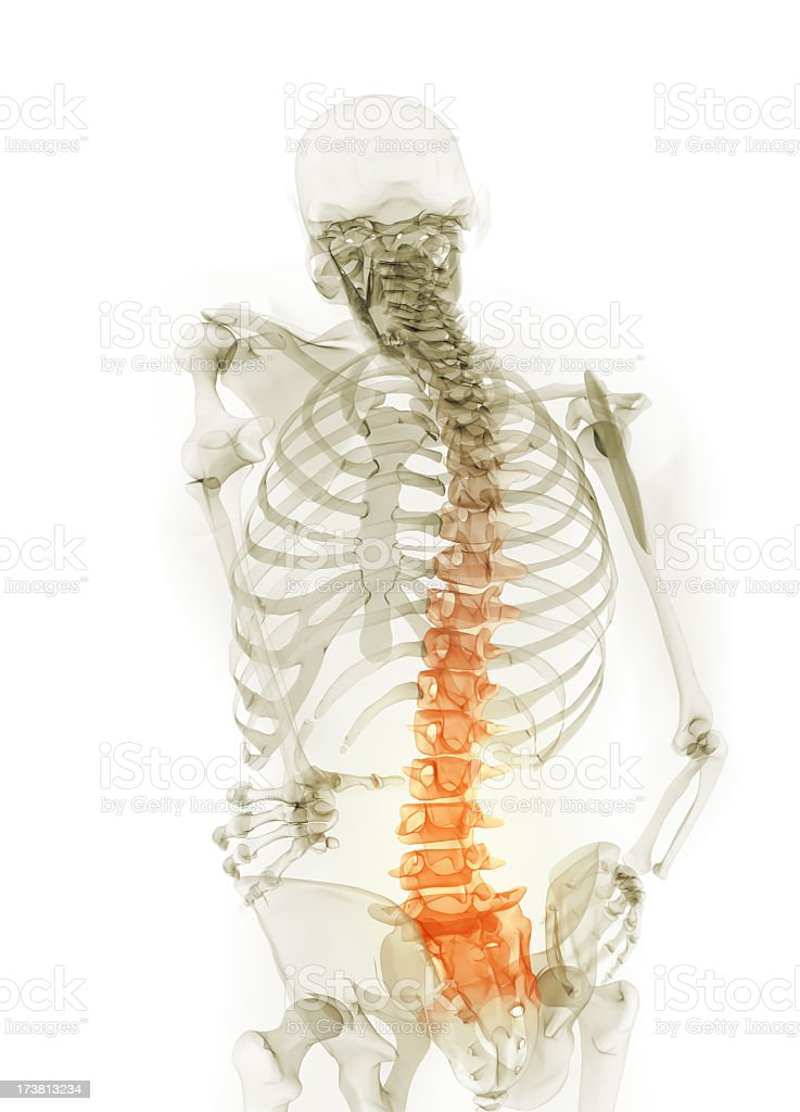 Skeletal representation illustrating back pain royalty-free stock photo