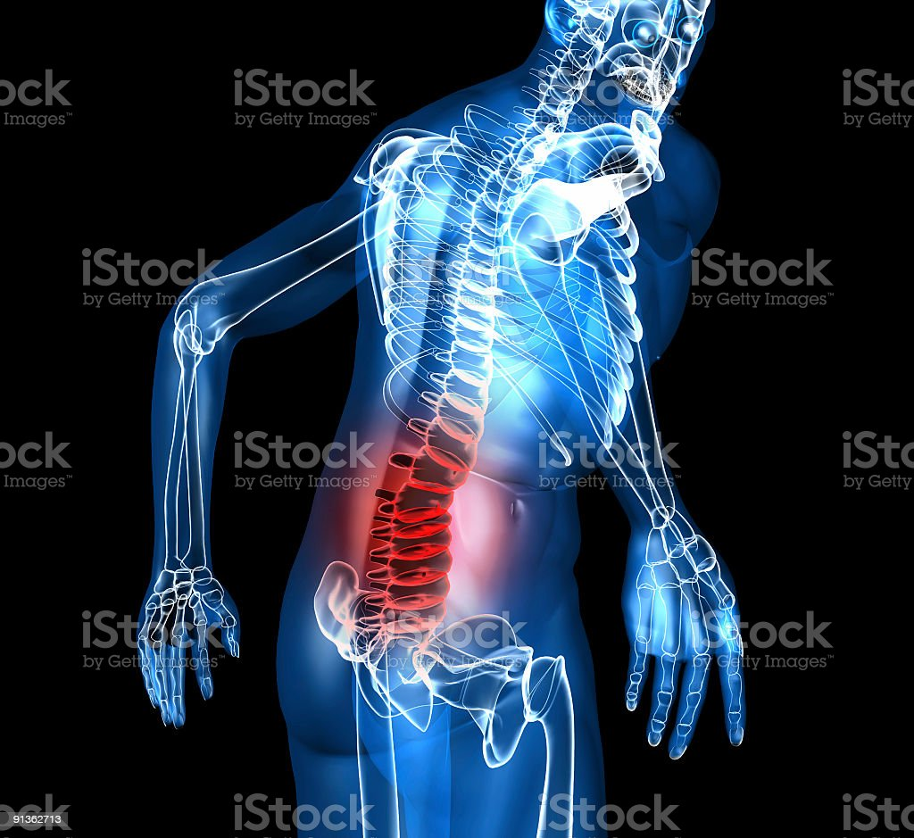 A skeleton depiction with back pain stock photo