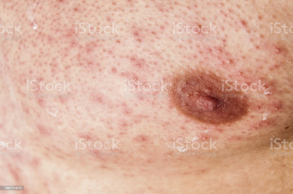 Skin Allergy Infection on Male Body royalty-free stock photo