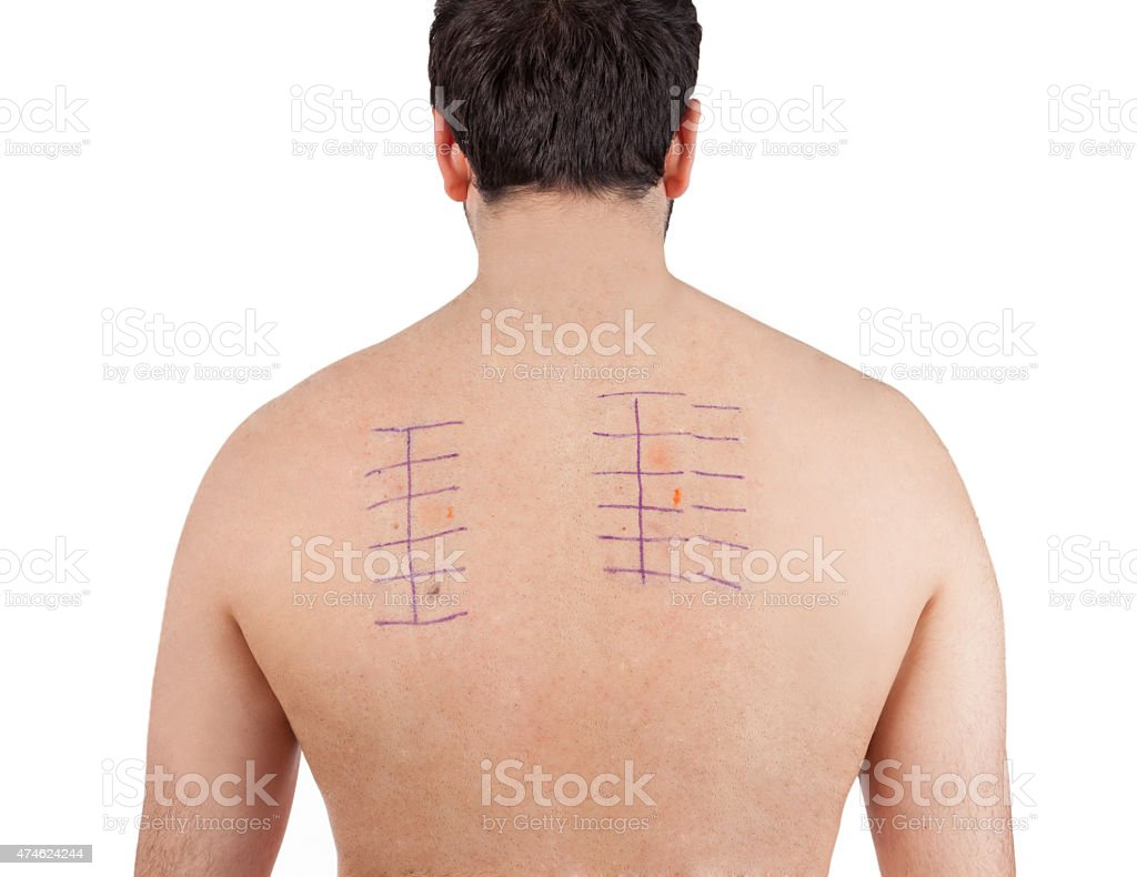 Skin Allergy Patch Test on Bacck stock photo