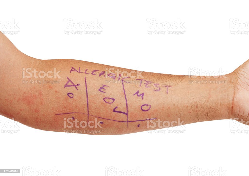 Skin Allergy Test stock photo