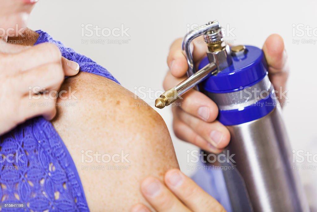 Skin cancer treatment stock photo