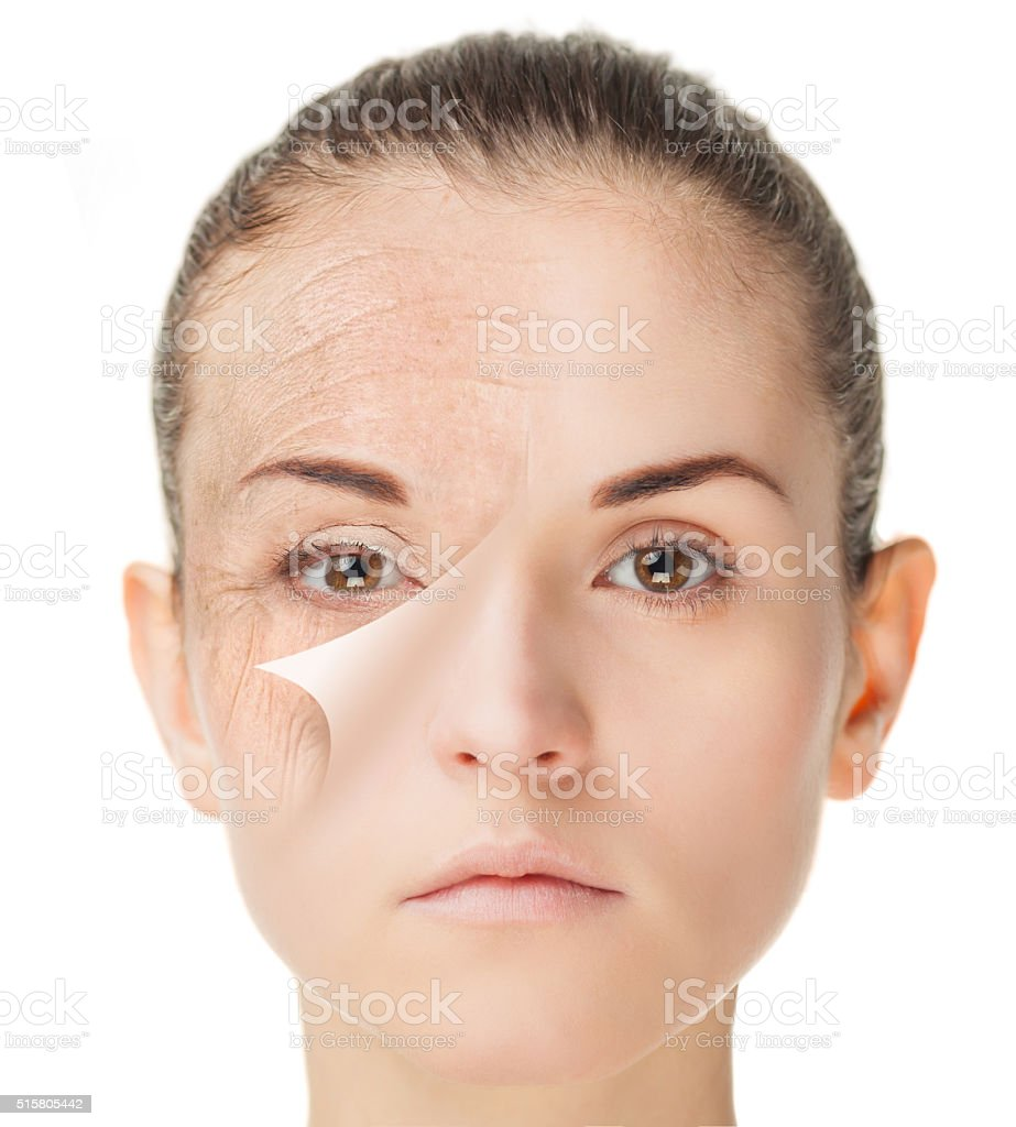 Skin care treatment before and after, rejuvenation concept stock photo