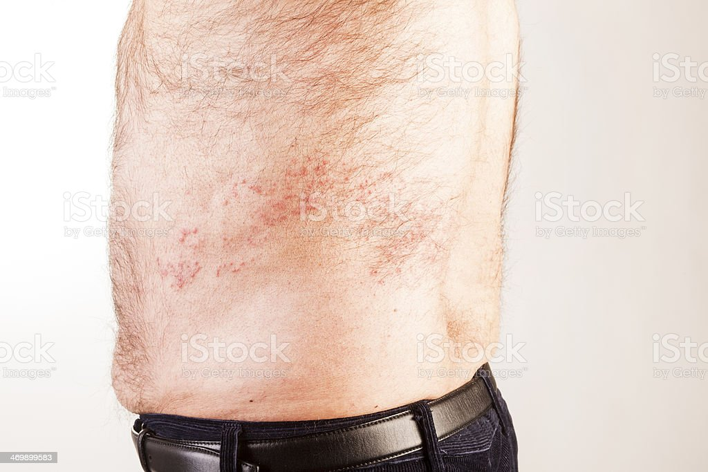 Skin Condition. royalty-free stock photo