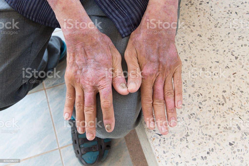 Skin disorder in back hand stock photo