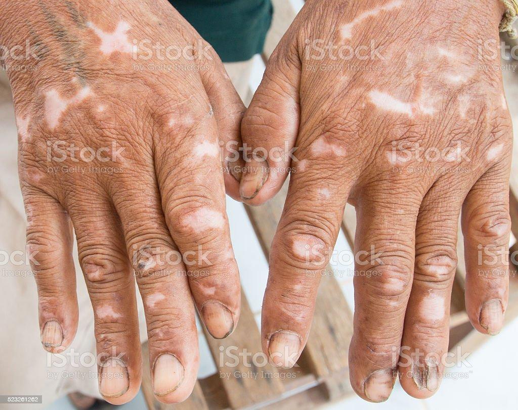 Skin disorder stock photo