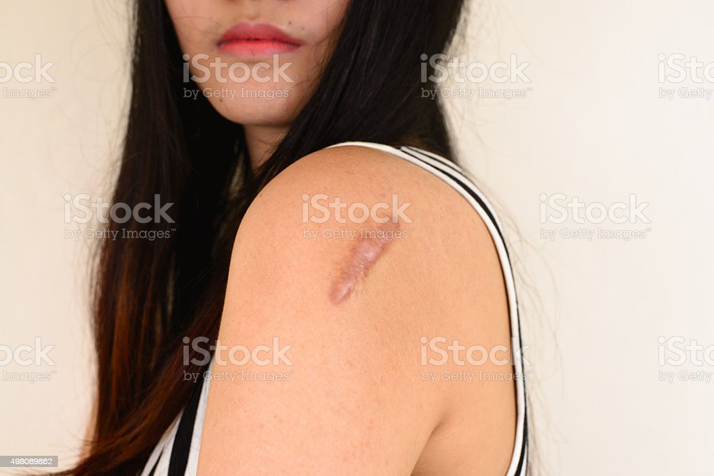 Skin lesions from allergies. stock photo