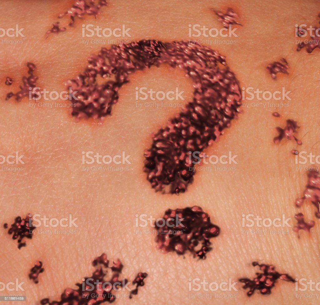 Skin Mole Question stock photo