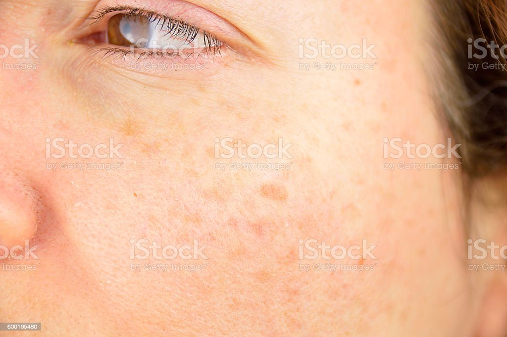 skin of woman with blemish and spots stock photo