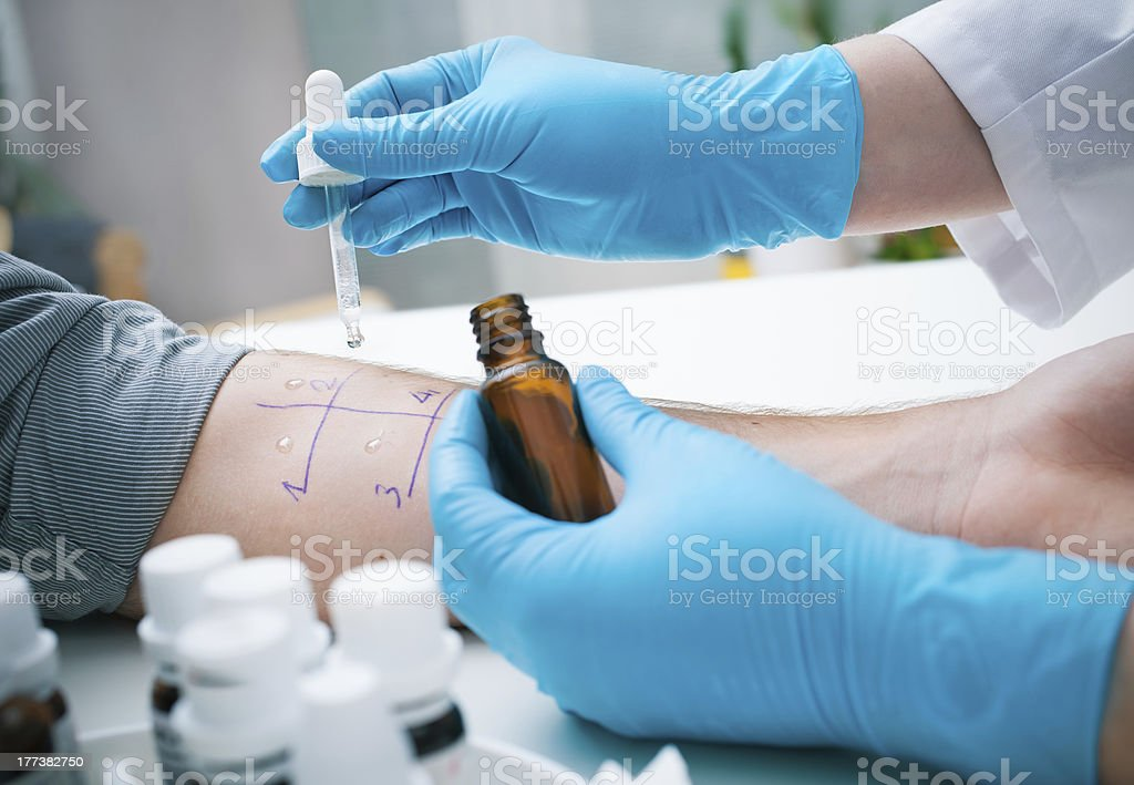 Skin prick allergy test stock photo