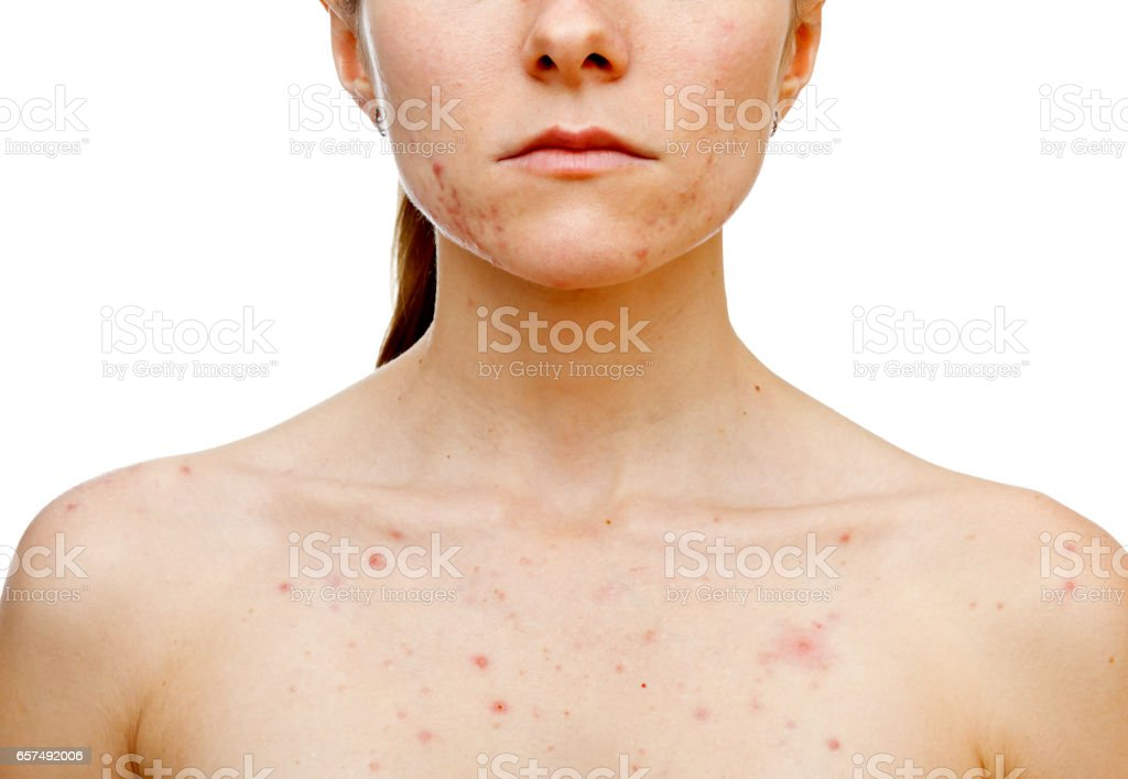 Skin problems stock photo