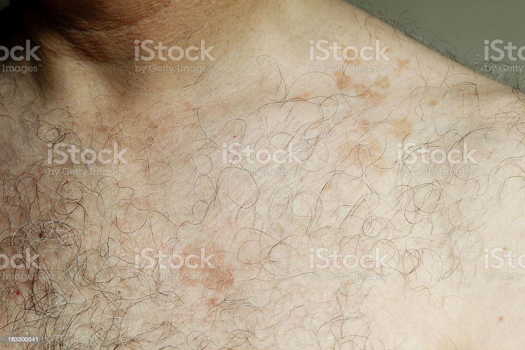 Skin problems - Pityriasis Versicolor on man's chest royalty-free stock photo