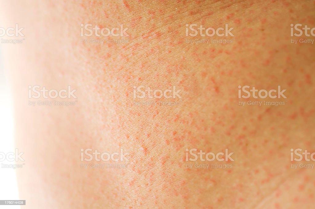 Skin rash royalty-free stock photo