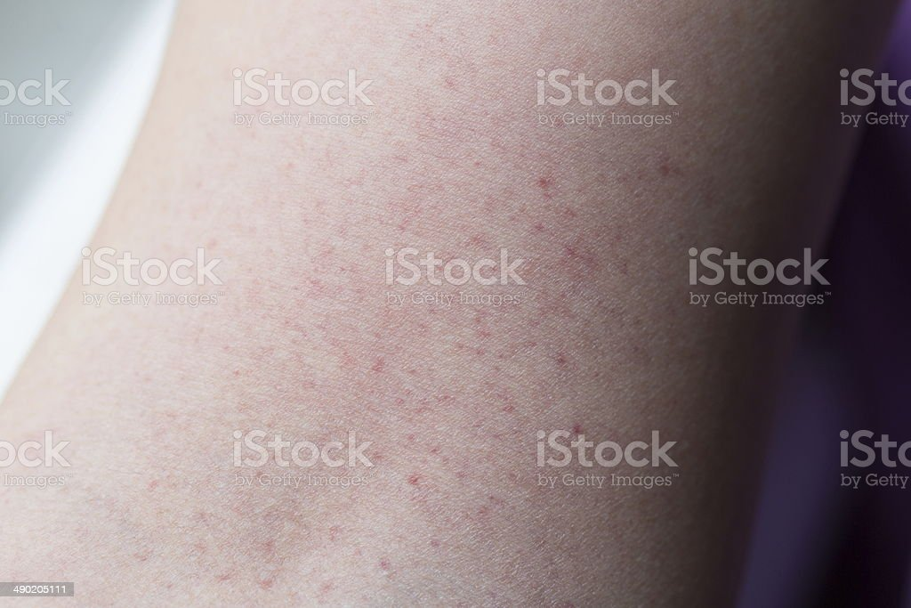Skin rash stock photo