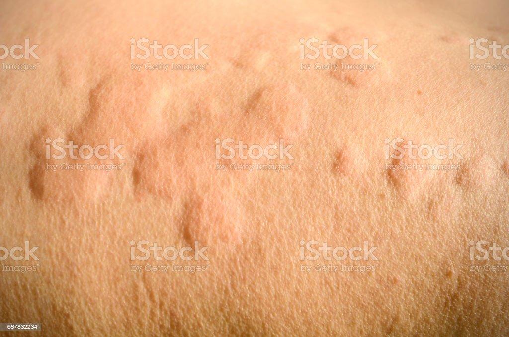 Skin rash, Urticaria, Allergic skin reaction. stock photo