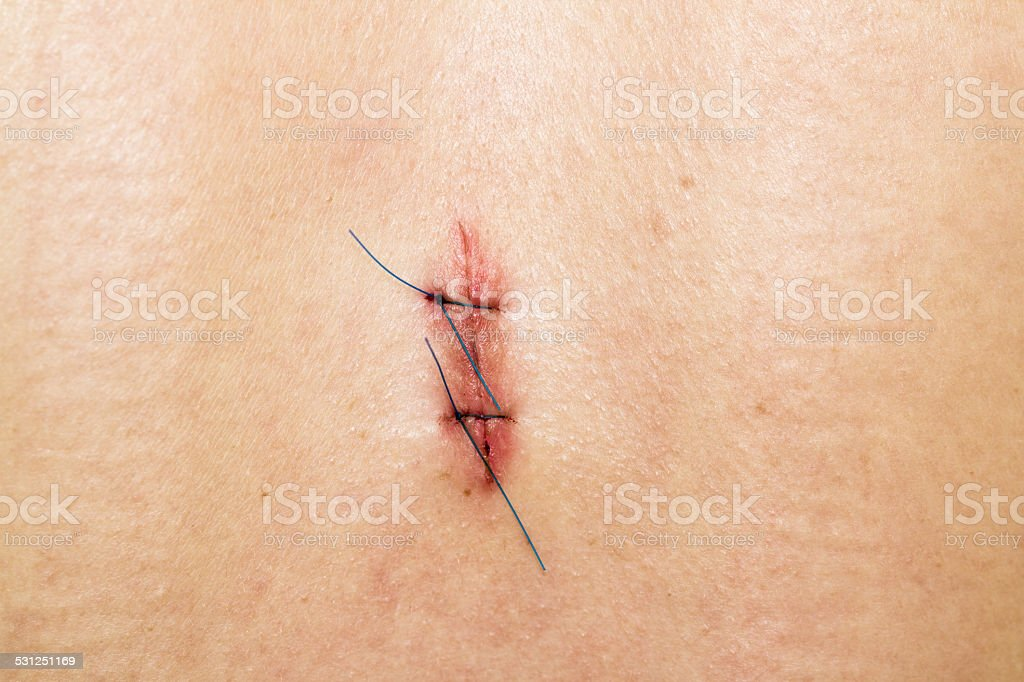 Skin Stiches stock photo