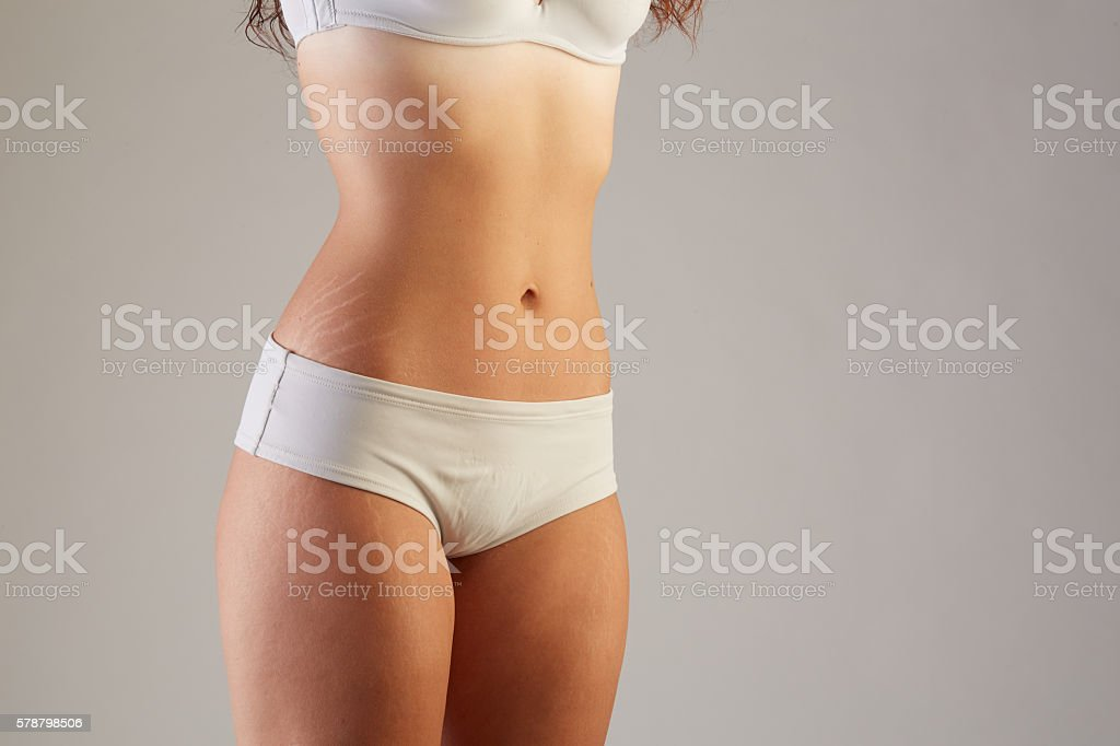 skin stretch marks stock photo