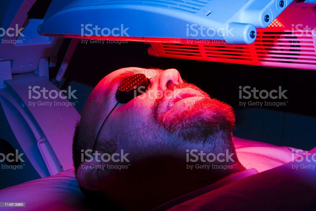 Skin-cancer treatment stock photo