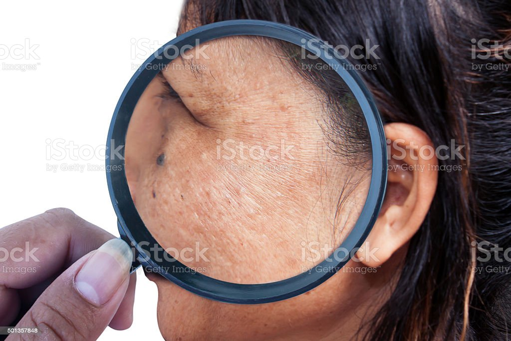 skincare and health concept - wrinkles  on the face stock photo