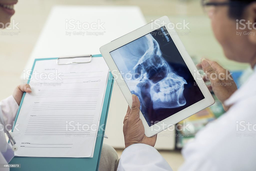 Skull x-ray stock photo