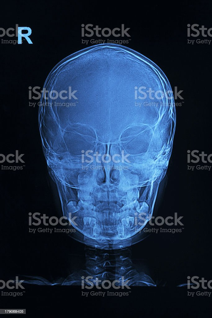 skull x-rays image royalty-free stock photo