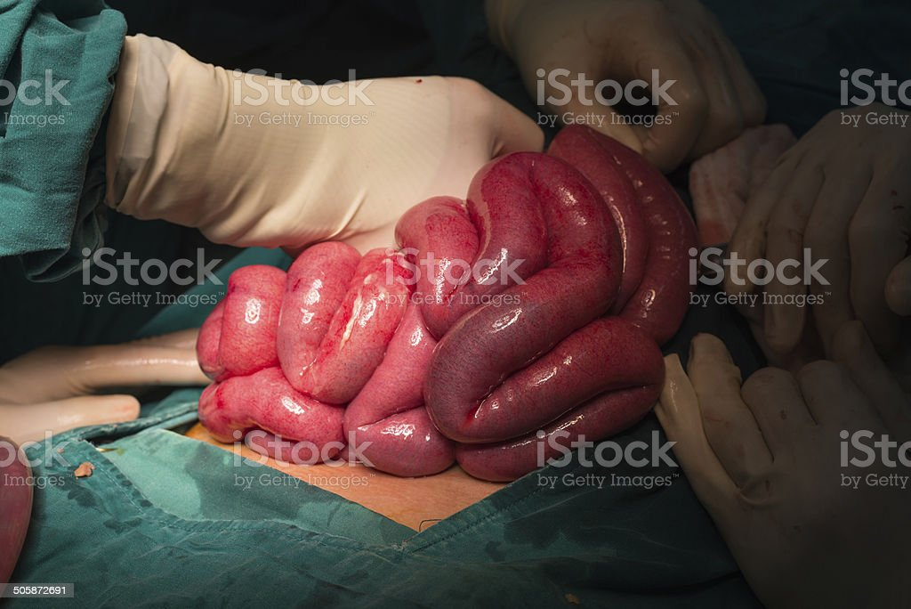 small bowel stock photo