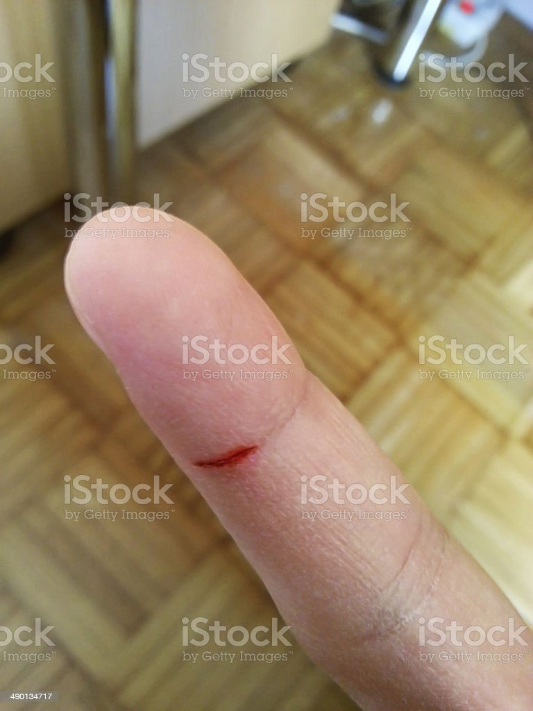 Small cut on a finger stock photo