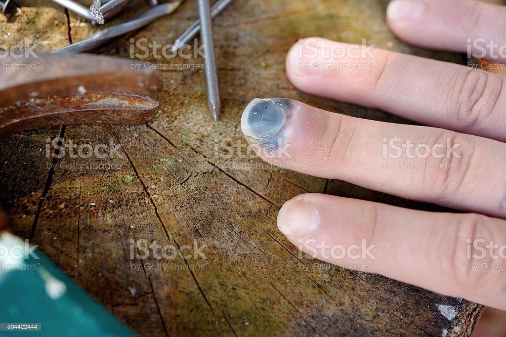 Smashed Finger Injury Male stock photo