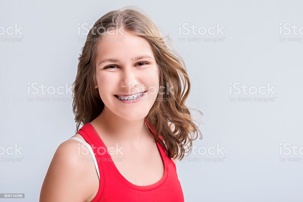 Smiling Caucasian Young Blond Teenage Girl With Teeth Bracket System stock photo