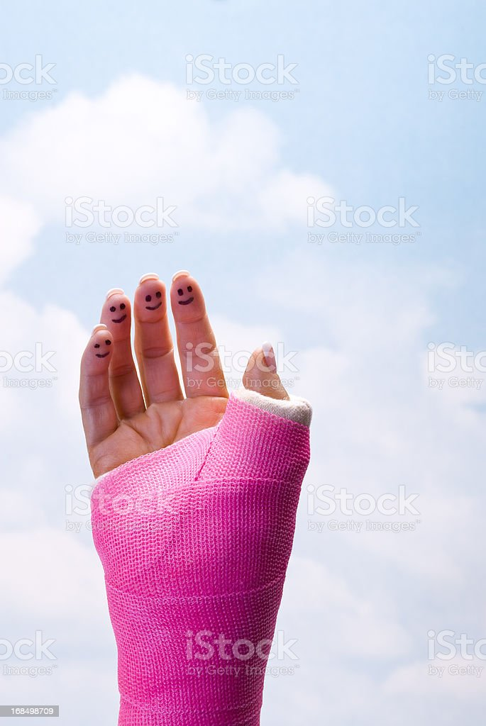 Smiling Fingers in Cast stock photo