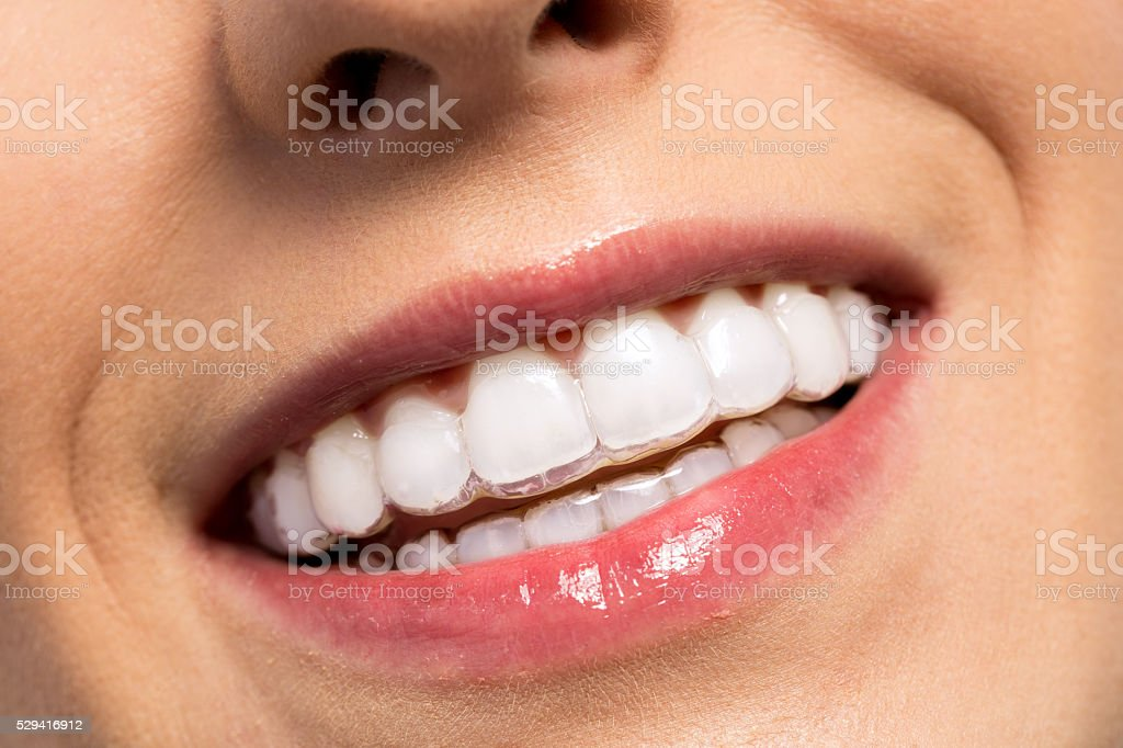Smiling girl wearing invisible teeth braces stock photo