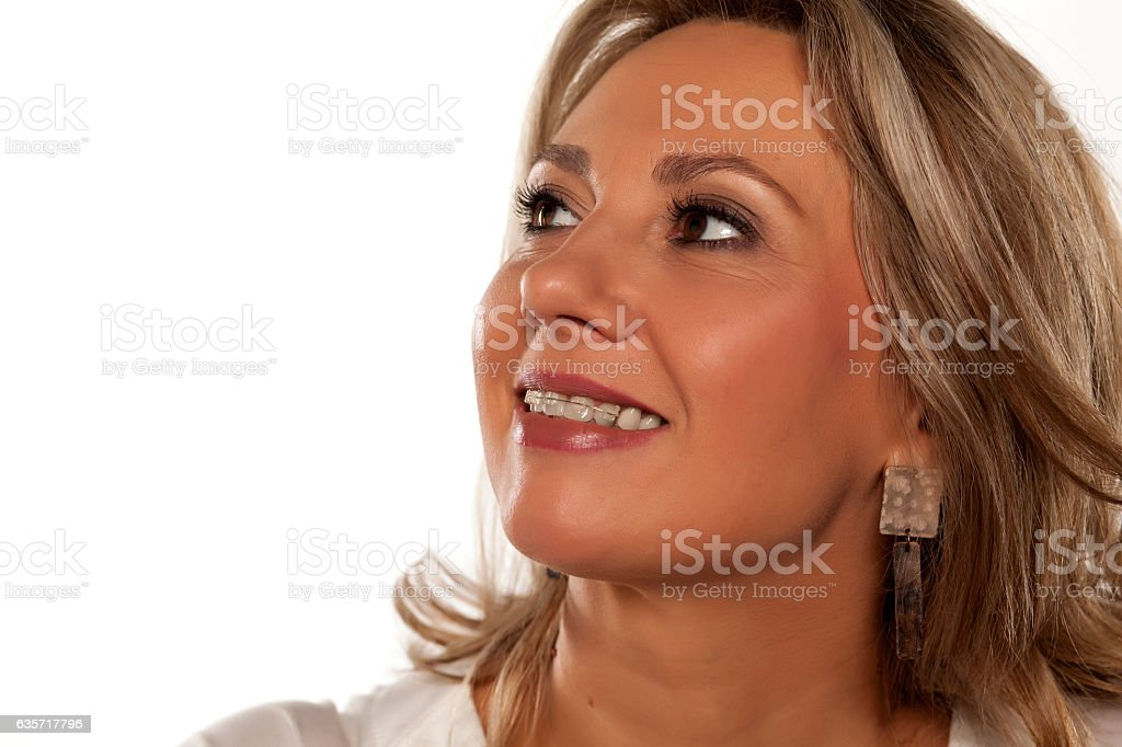 smiling middle-aged woman with braces stock photo