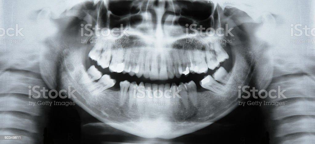 Smiling radiography stock photo