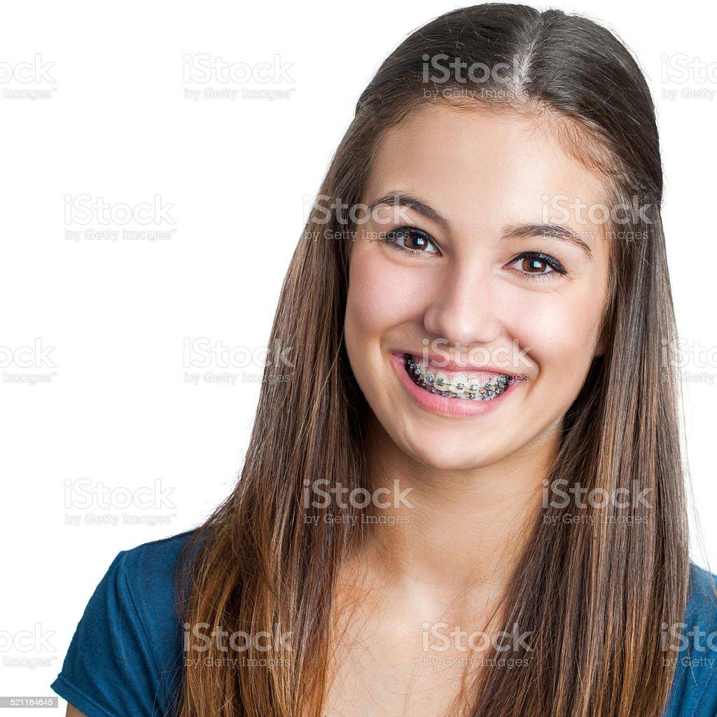 Teen fille souriant montrant bretelles dentaires. photo libre de droits
