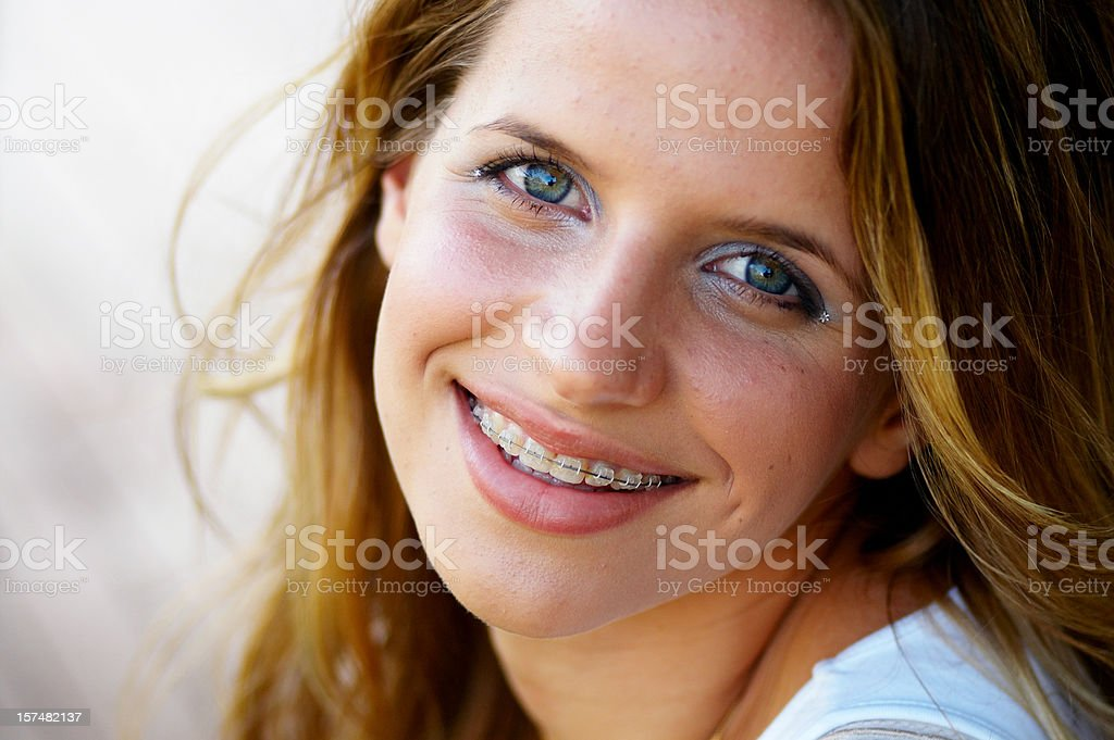 Smiling teenage girl with braces stock photo