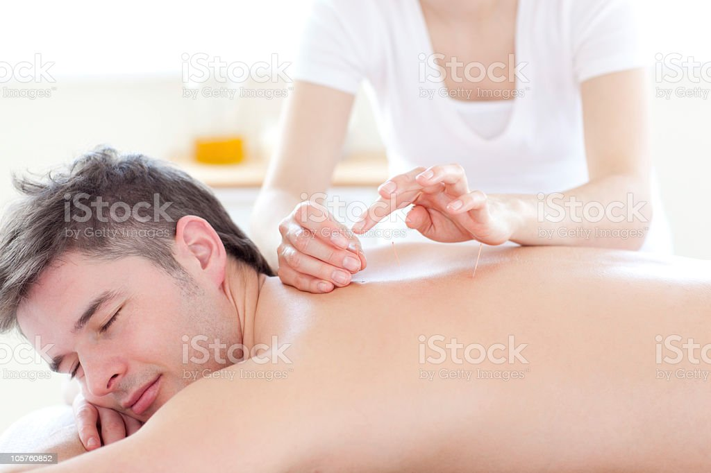 Smiling young man in an acupuncture therapy stock photo