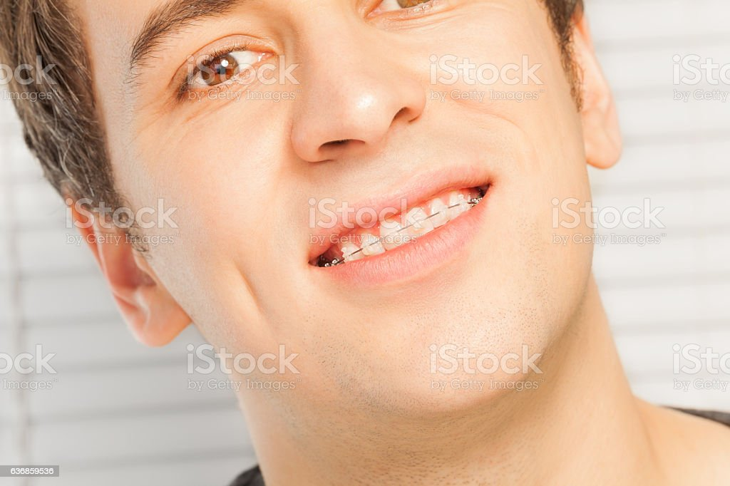 Smiling young man with dental braces stock photo